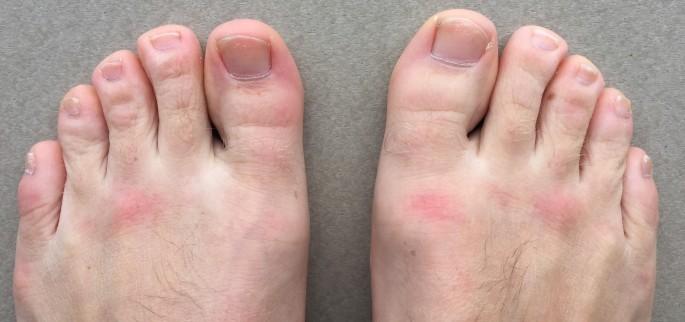 Rash on top feet from SUP.jpg